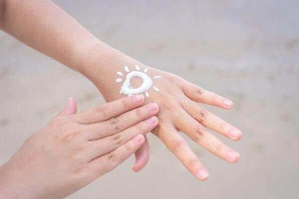 cuidado de manos quemadas por el sol