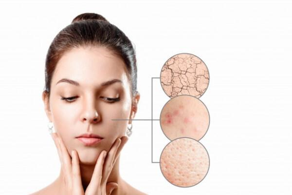rutina para la piel grasa
