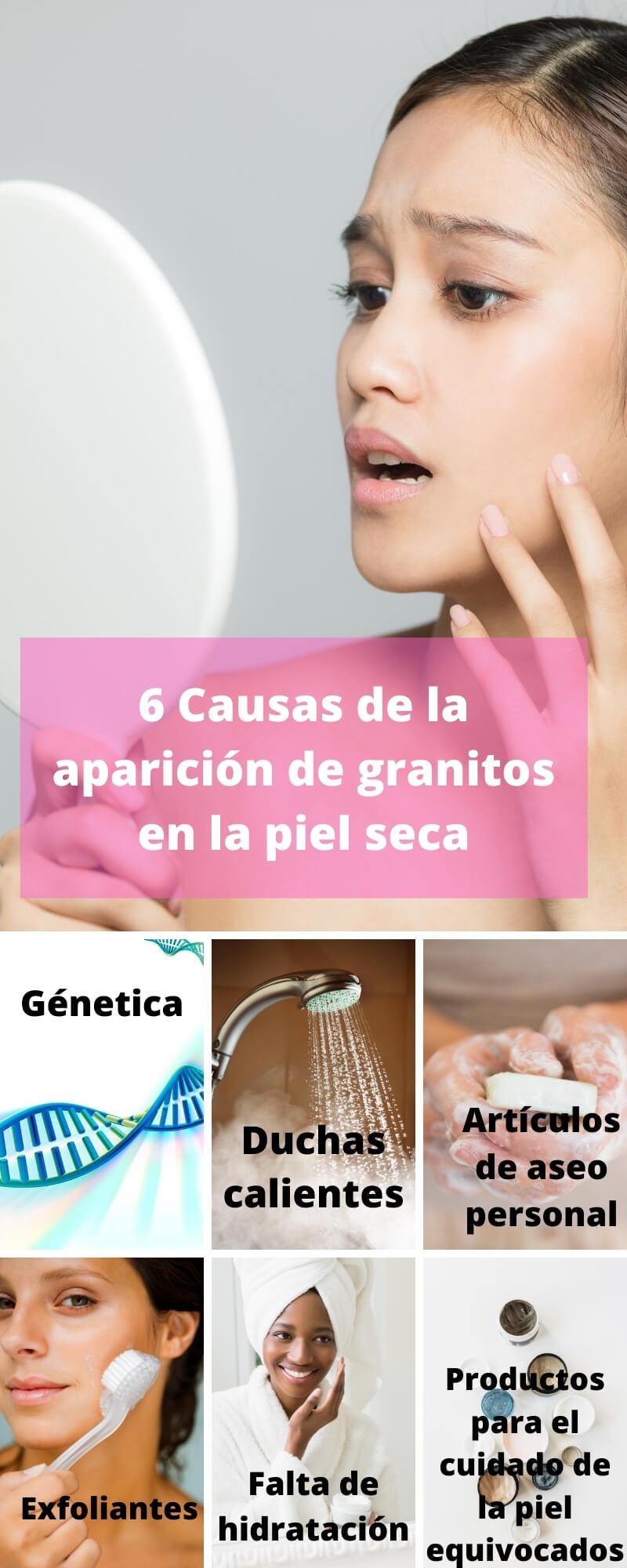 Infografía de las razones más comunes de la aparición de granitos en la piel seca