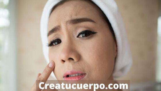 consejos para evitar la aparición de granitos en la piel seca