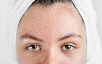 ¿Por que la piel seca produce granitos en la cara? 6 causas comunes