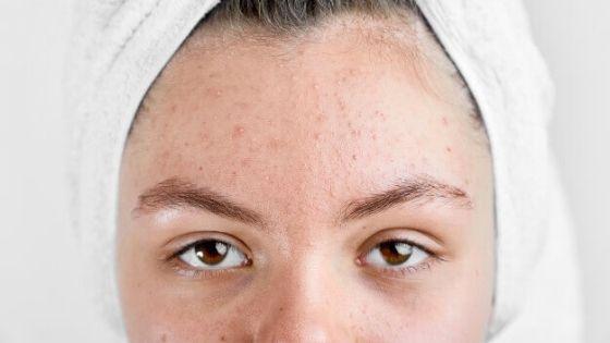 granitos en la piel seca