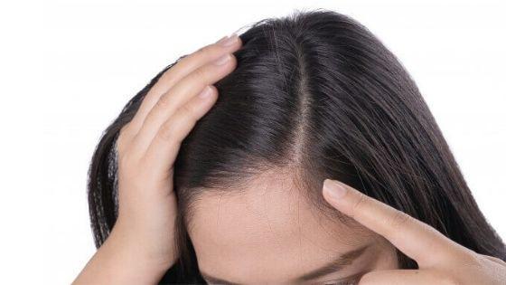 Caída de pelo, 3 razones que no sabías