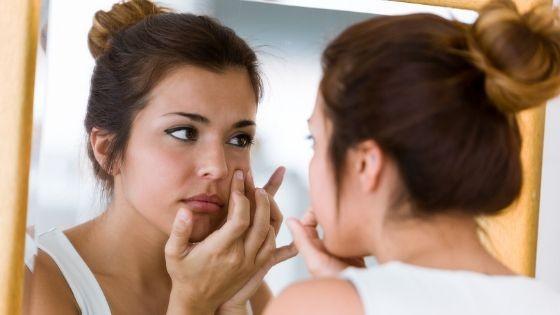 remedios naturales para el acné y granos en la piel grasa