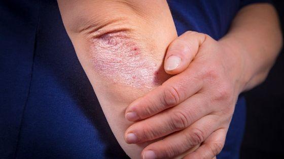 causas del eczema
