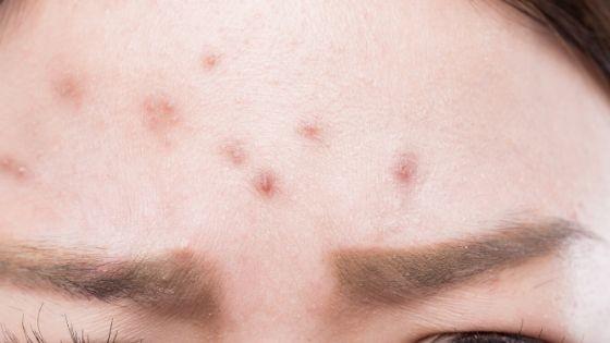 ¿Funcionan los remedios caseros contra el acné?