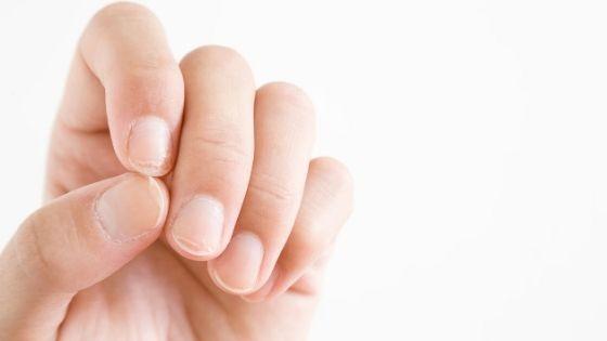 ¿Por qué se parten las uñas?