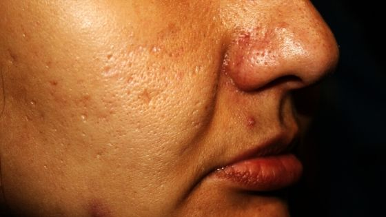 piel grasa con acné y granos