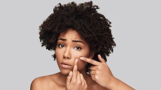 Hábitos saludables para la piel grasa