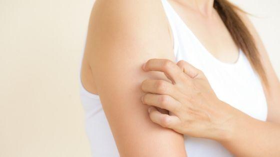 Como tratar el eczema naturalmente sin corticoides