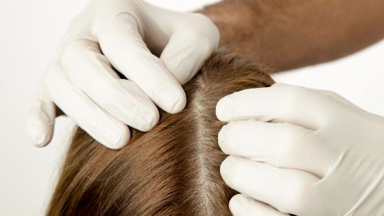 Qué causa la grasa en el cuero cabelludo