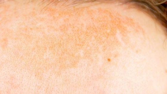 ¿Qué causa la piel atópica?