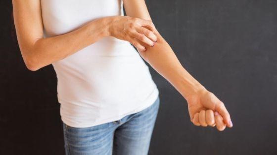 puedes prevenir la dermatitis
