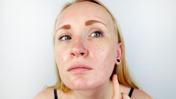 ¿Qué es bueno para la piel grasosa?