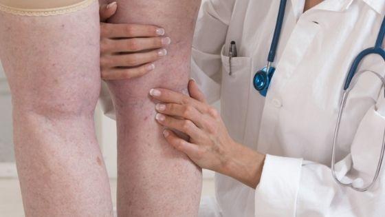 ¿Cómo eliminar la piel de naranja en las piernas y glúteos?