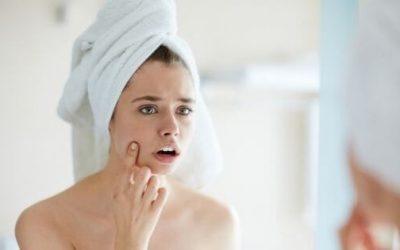 ¿Cómo quitar los granos de la cara? 11 Trucos increíbles que no sabes