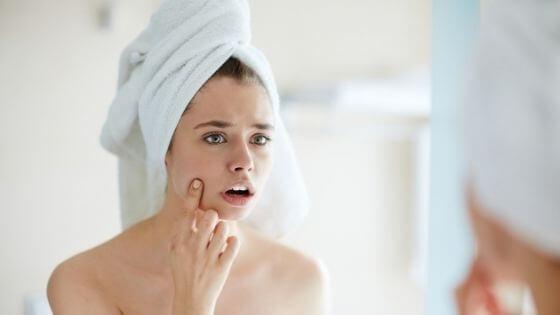 ¿Cómo quitar los granos de la cara?