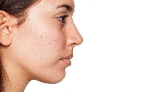 ¿Cómo eliminar los granos de la cara?