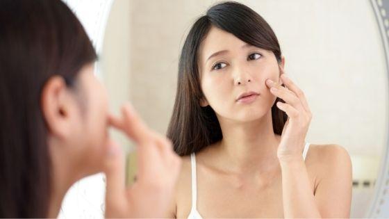 ¿Qué hacer para tener una piel menos aceitosa?