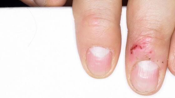 ¿Por qué tengo unas uñas débiles y quebradizas?