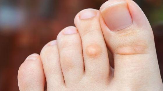 ¿Por qué salen los callos en los dedos de los pies?