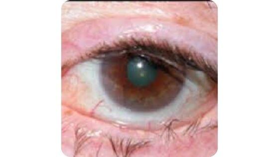 Pestañas dentro del ojo por entropión