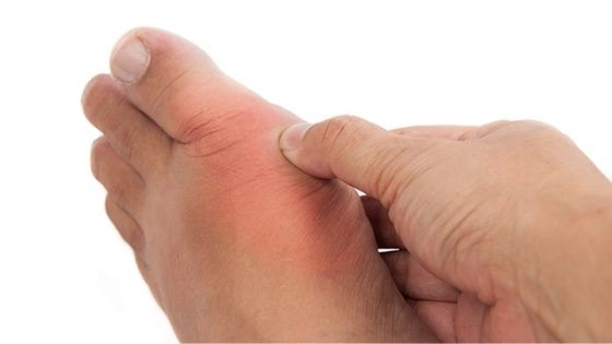 Cuando acudir al doctor si se tienen sabañones