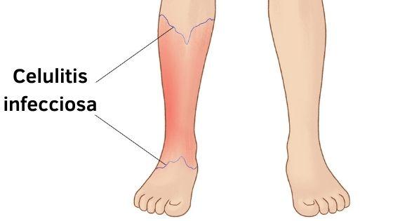 Sitios comunes donde aparece la celulitis infecciosa